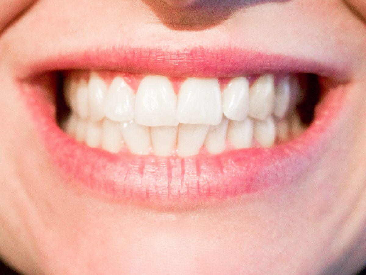 Dzisiejsza technika stosowana w salonach stomatologii estetycznej być może spowodować, że odbierzemy ładny uśmiech.